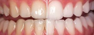 newport-beach-teeth-whitening